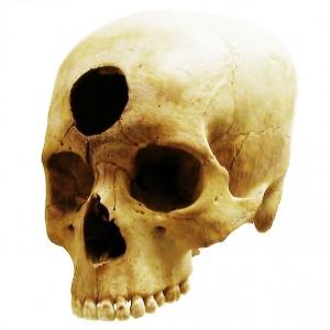 Studi archeologici sulla lobotomia con il Tumi